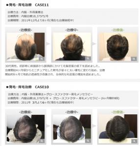 銀クリ薄毛治療成功例
