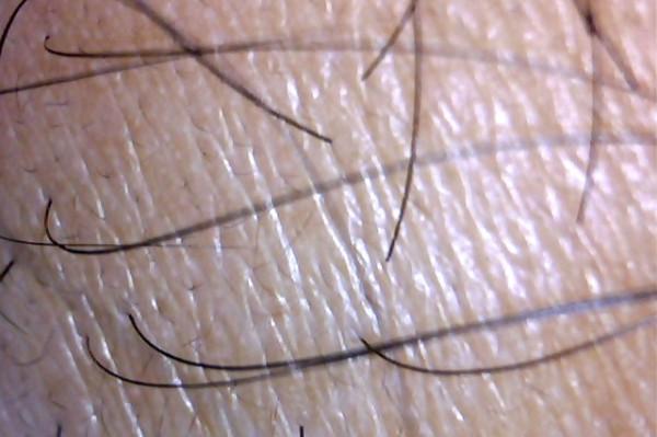 1ヶ月前の前髪・M字の所