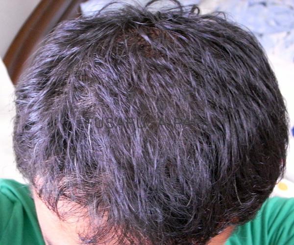 現在の私の薄毛状況。かなり改善されてますよね?