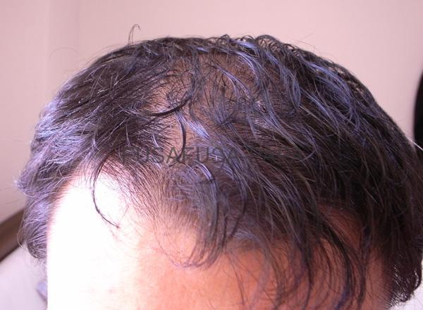 9ヶ月前の前髪、かなりヤバイね。