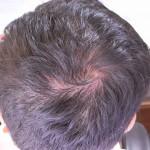 薄毛治療9ヶ月経過した後頭部